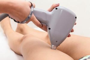 Como ocorre uma sessão de depilação a laser?